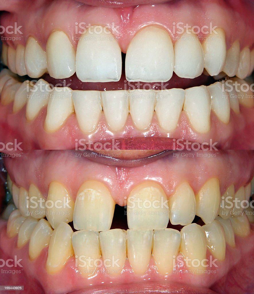 Image of straight white teeth and crooked yellow teeth stock photo