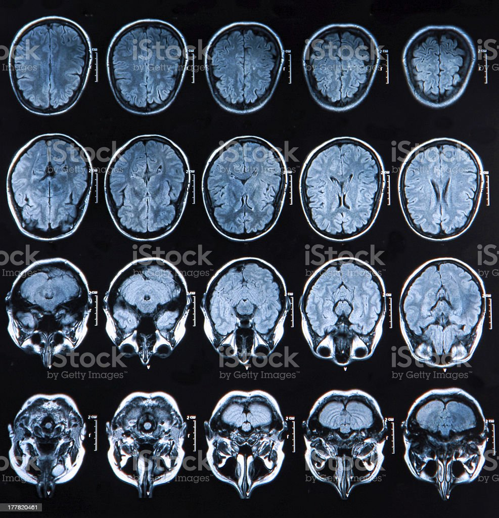 Images from an MRI scan of a brain stock photo