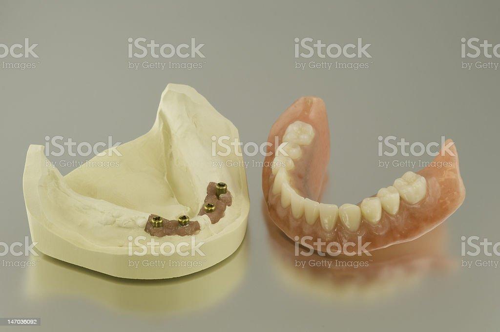 Implant denture stock photo