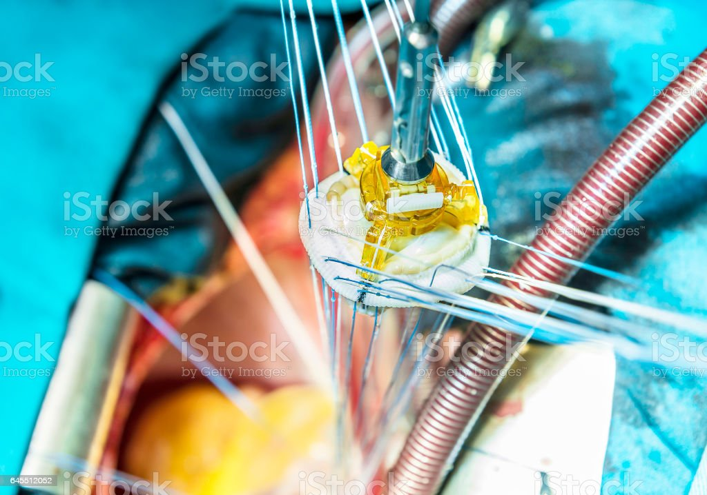 Implantation of artificial biological heart valve prosthesis stock photo