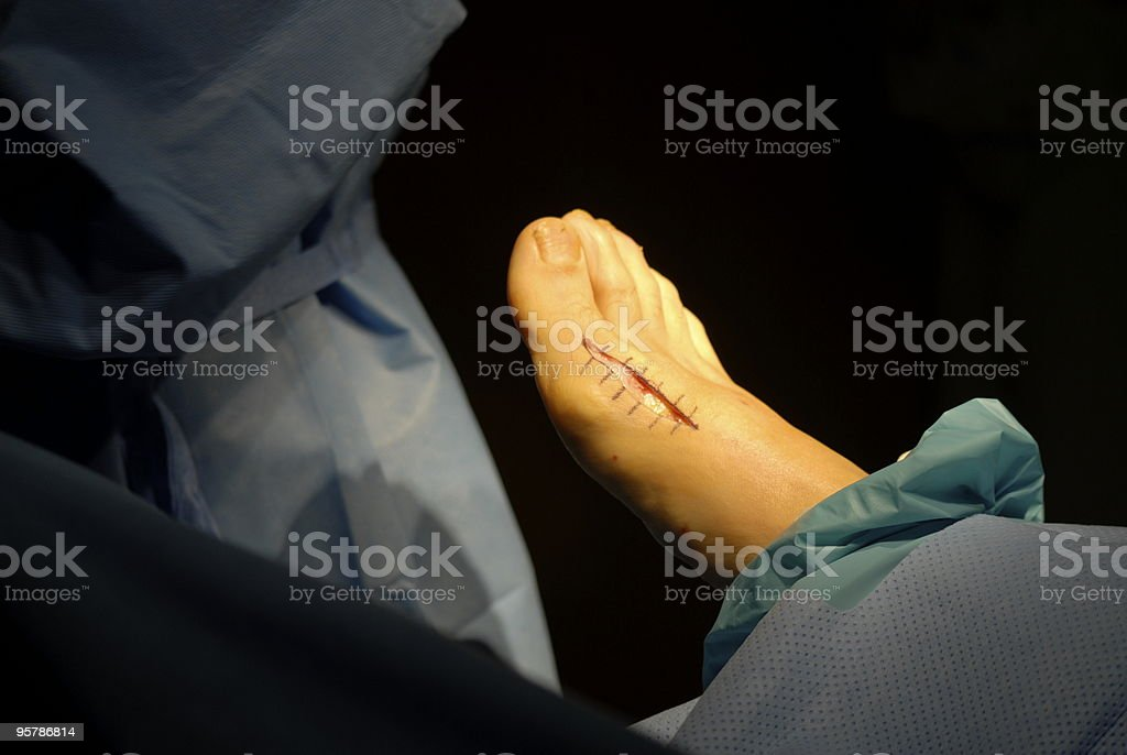 Incision for bunionectomy surgery royalty-free stock photo
