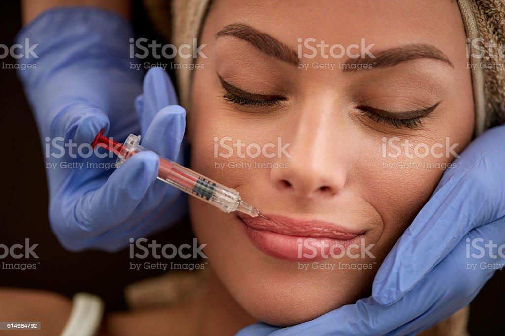 increase lips stock photo