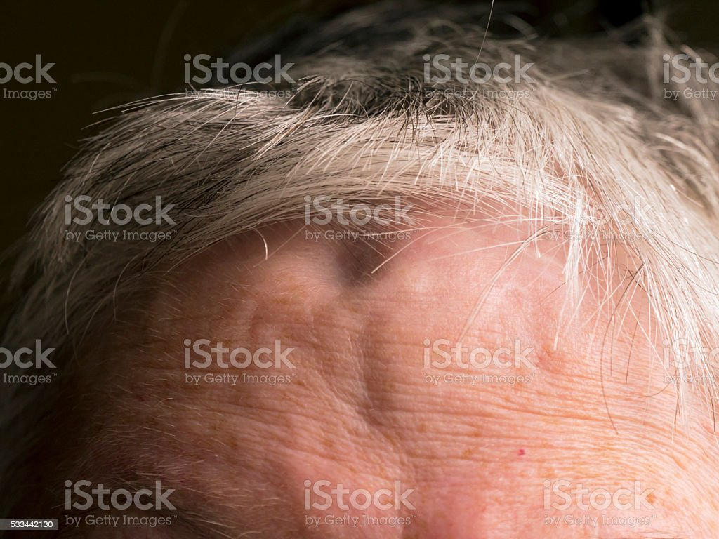 Indentations in female forehead caused by a craniotomy stock photo