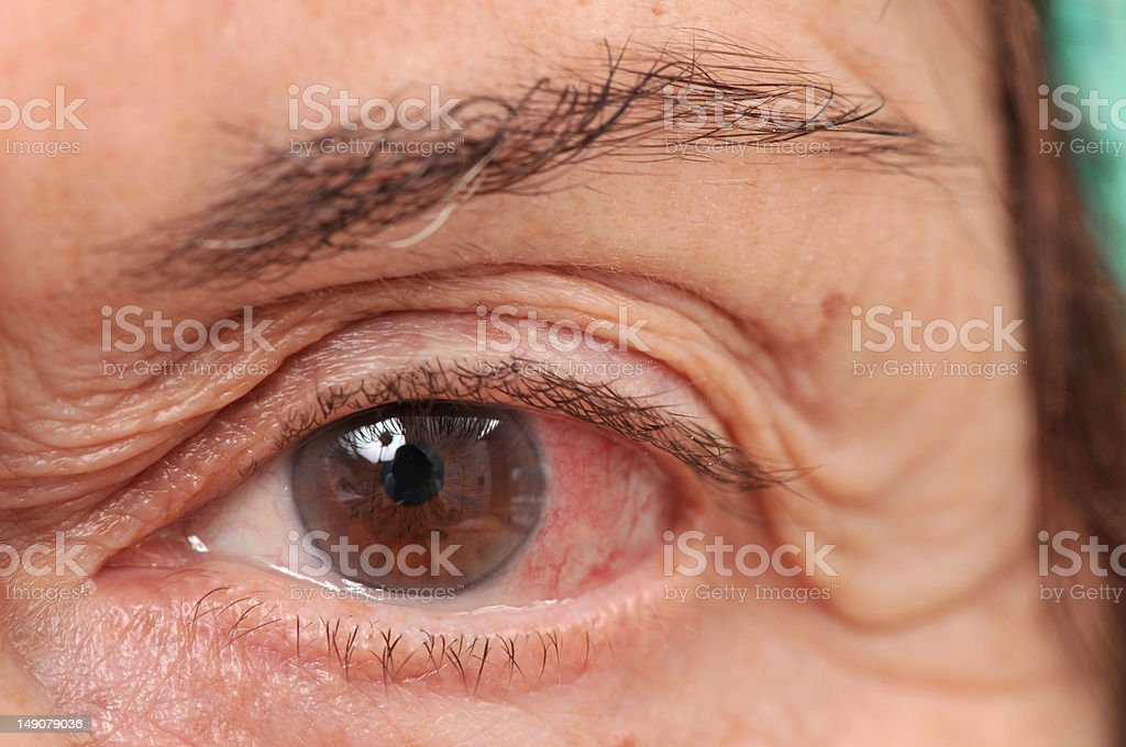Infected eye stock photo