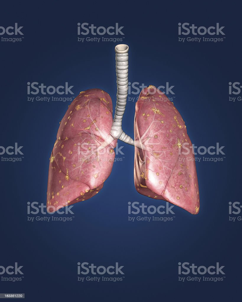 Infected lungs isolated on blue background royalty-free stock photo