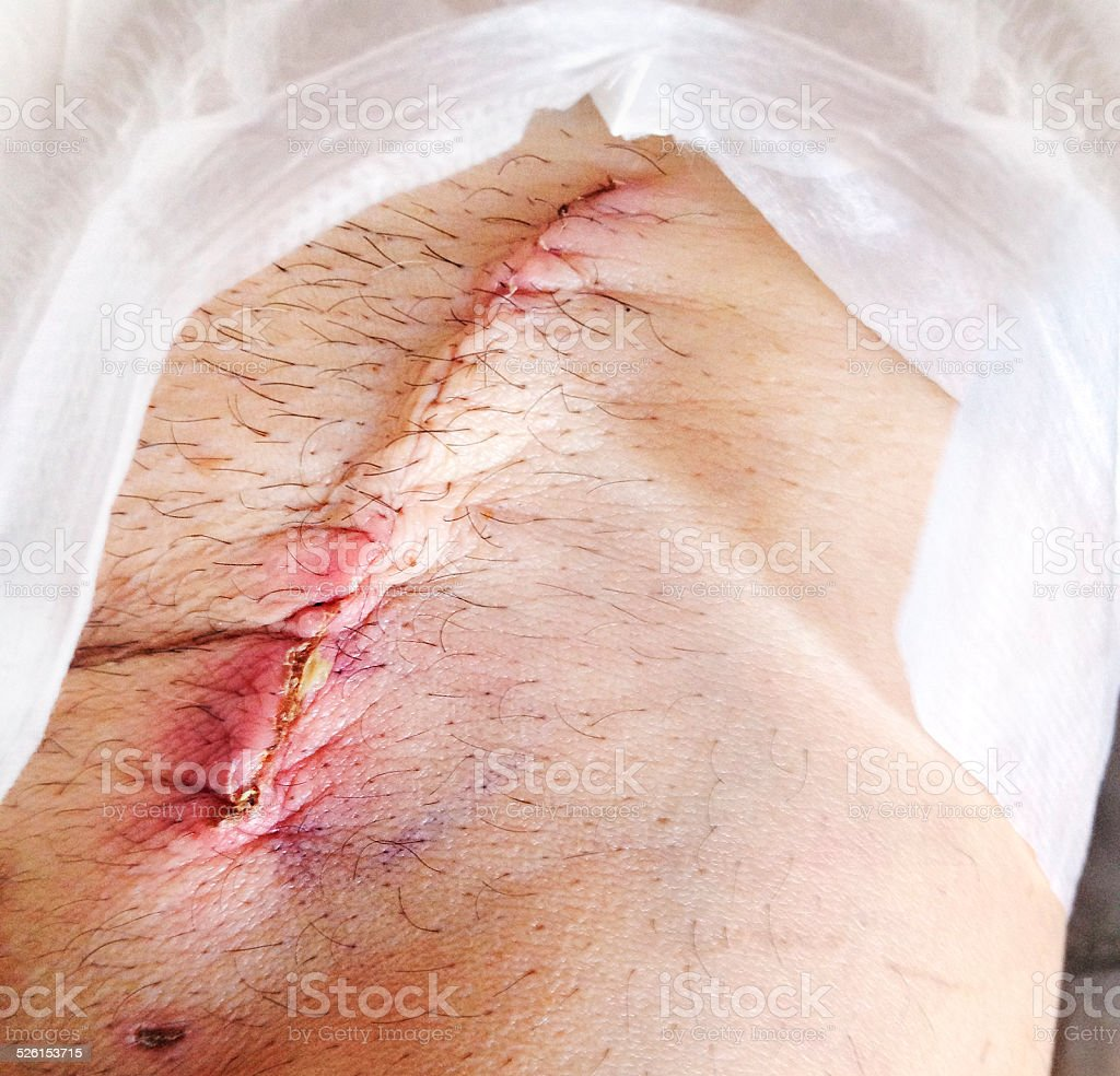 Infected Sutures stock photo
