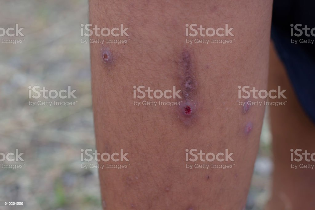 Infected wound on leg. stock photo