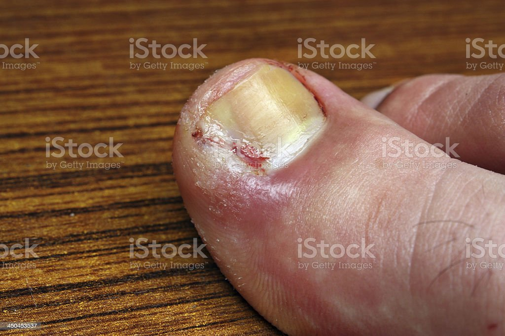 Infection in the nail toe stock photo