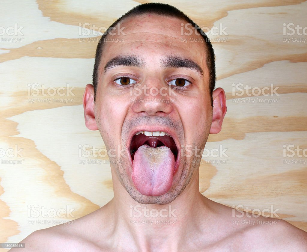 Infection tongue candida albicans stock photo