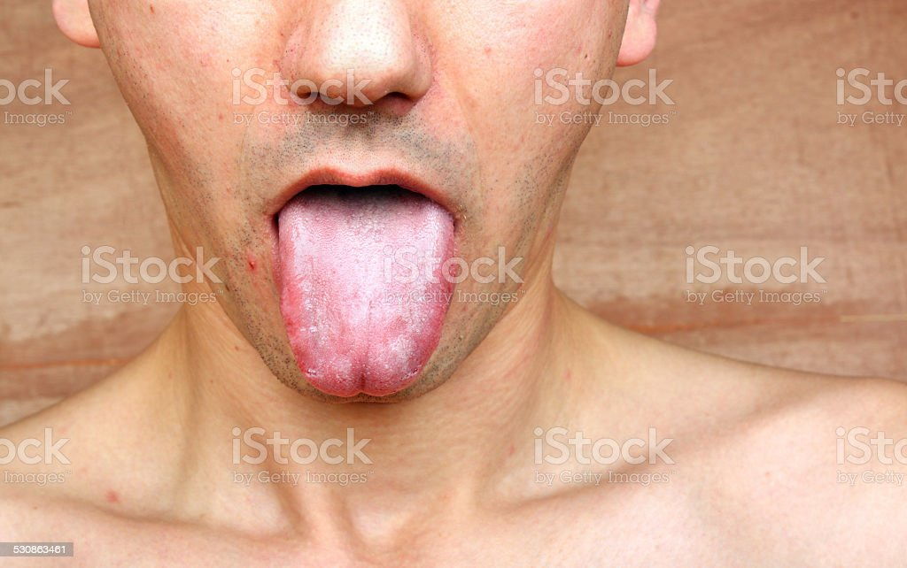 Infection tongue stock photo