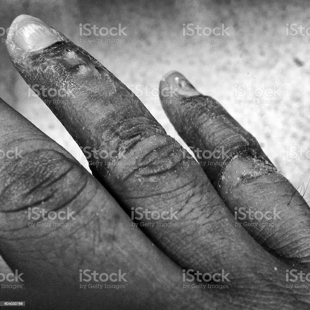 Infectious wound on finger stock photo