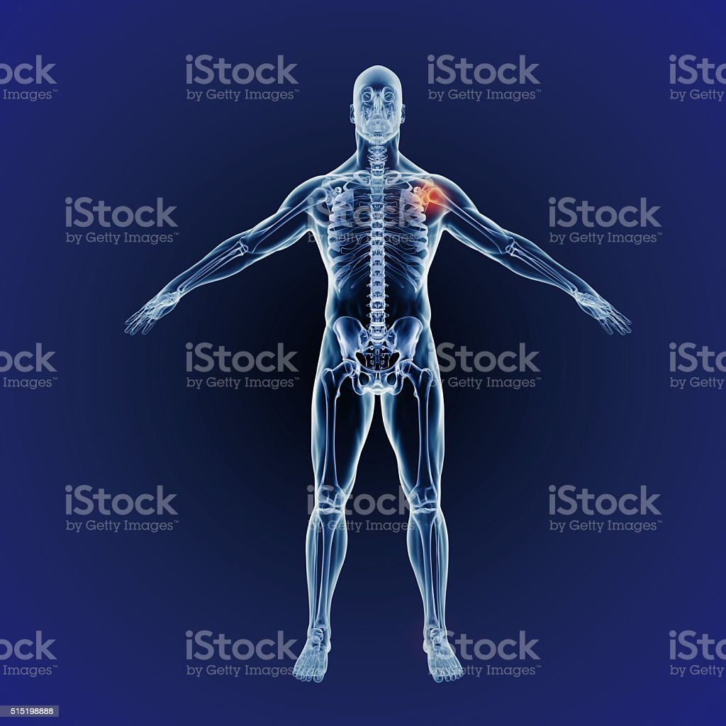 Inflammation can strike anywhere stock photo