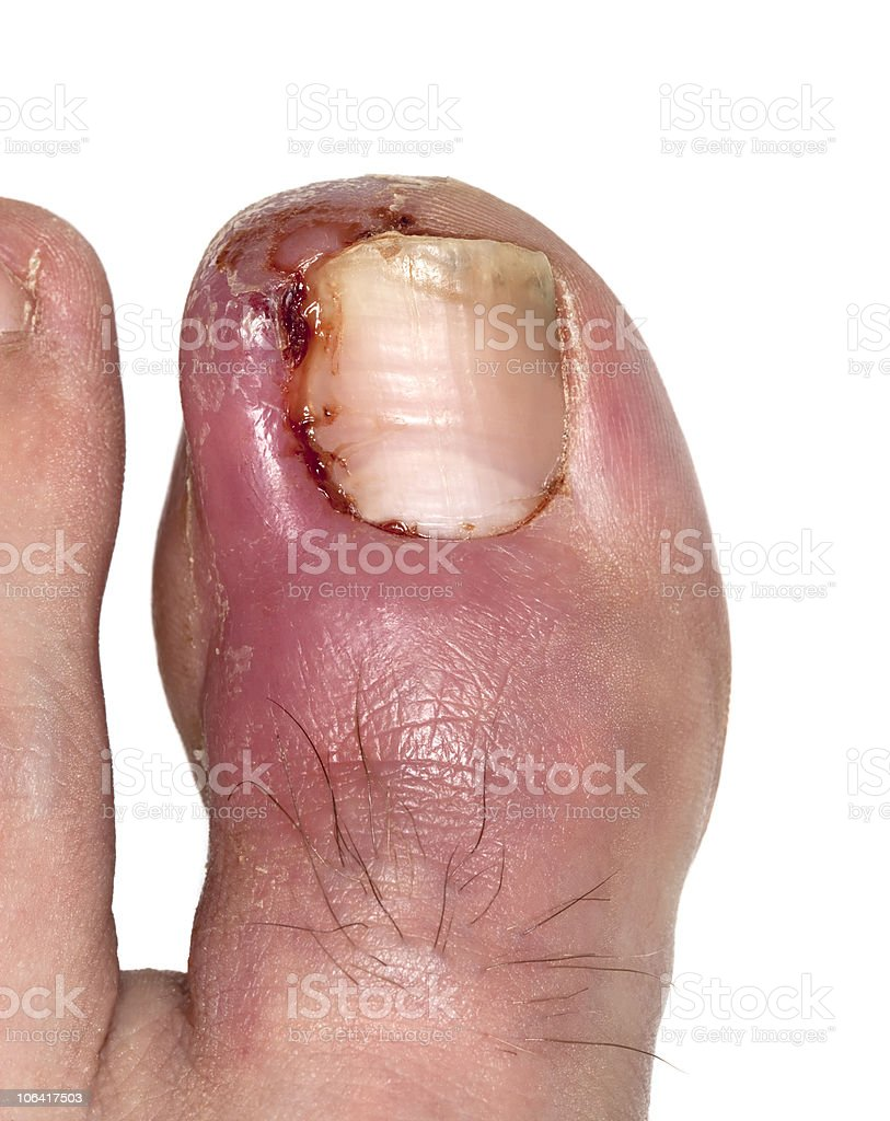 Ingrowing toe-nail. Macro photo. royalty-free stock photo