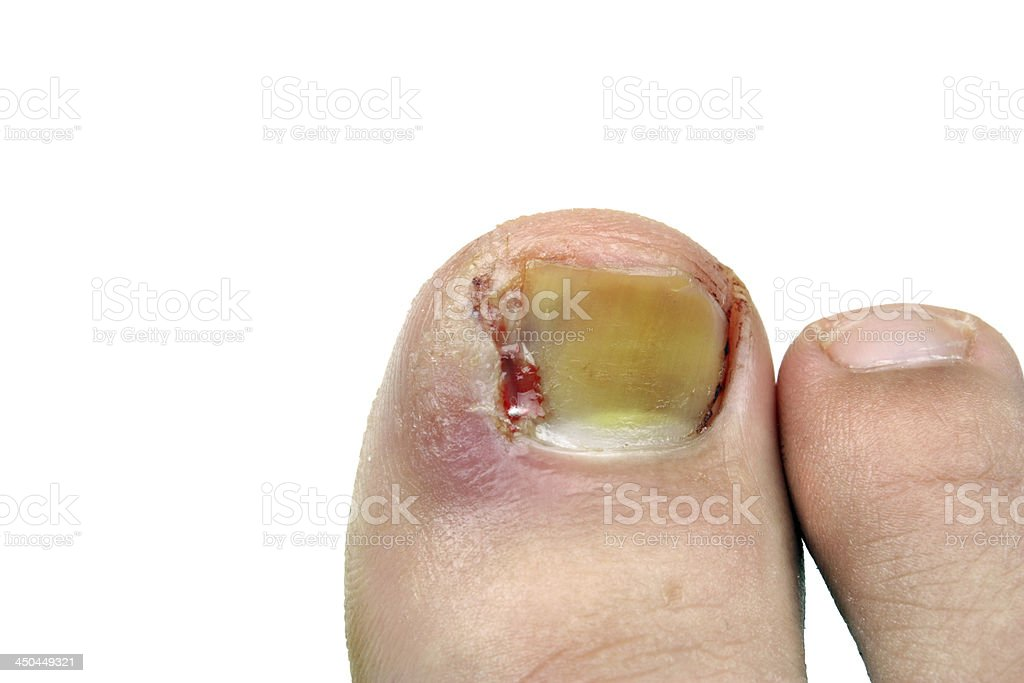 Ingrown male toenail after surgery royalty-free stock photo