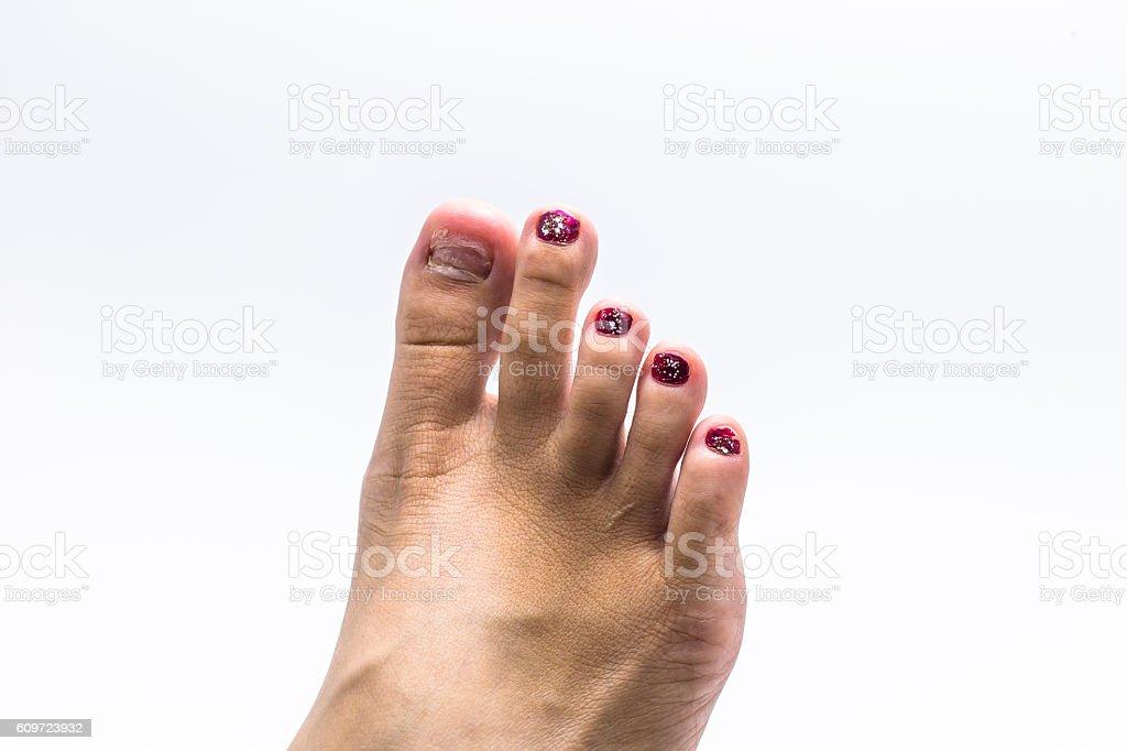 ingrown nail stock photo