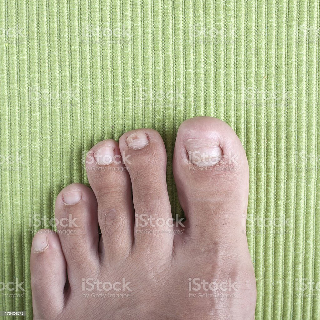 Ingrown toe nail stock photo