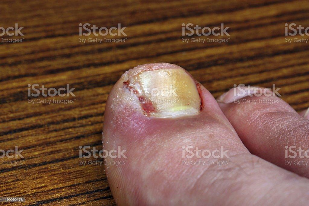 Ingrown toenail after surgery royalty-free stock photo