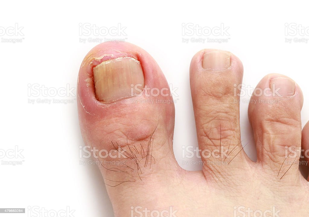 Ingrown toenail stock photo