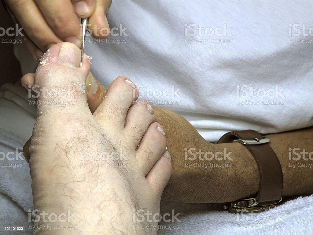 Ingrown toenail treatment stock photo
