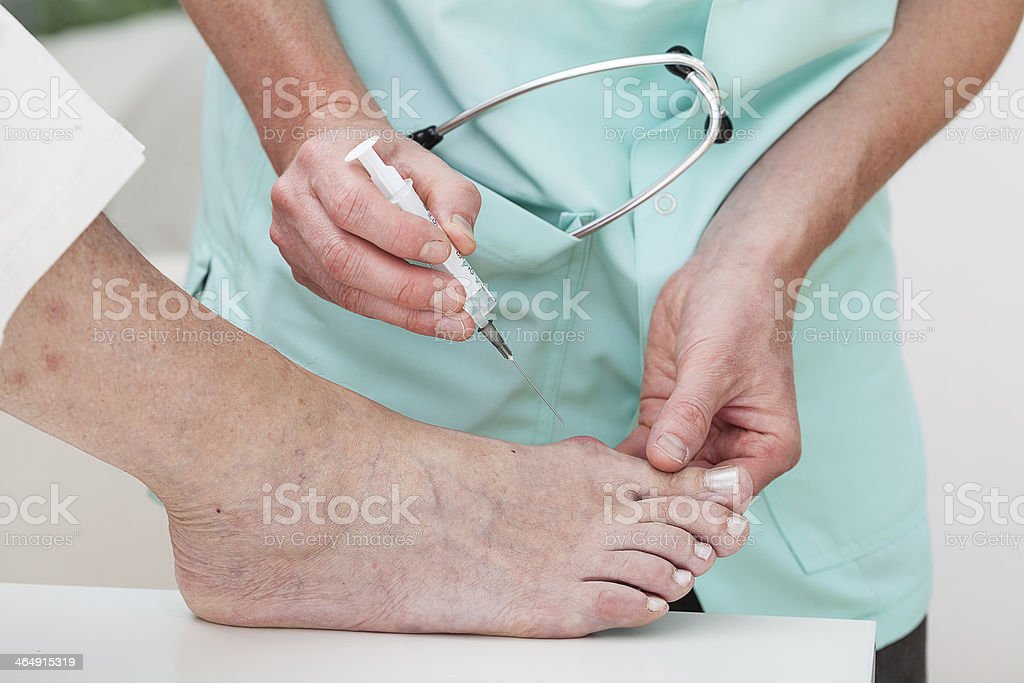 Injection to bunion stock photo