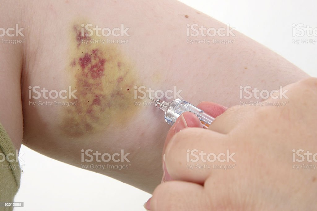 Injections Daily royalty-free stock photo