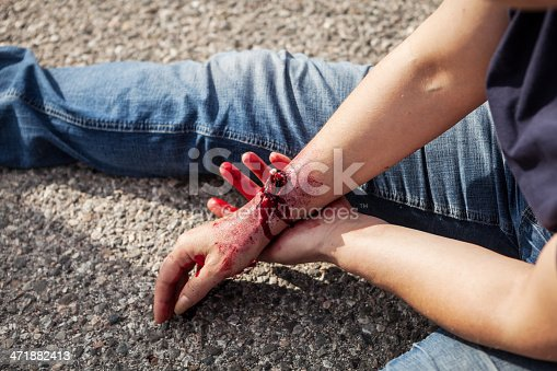 injured forearm compound fracture stock photo 471882413 | istock, Human Body