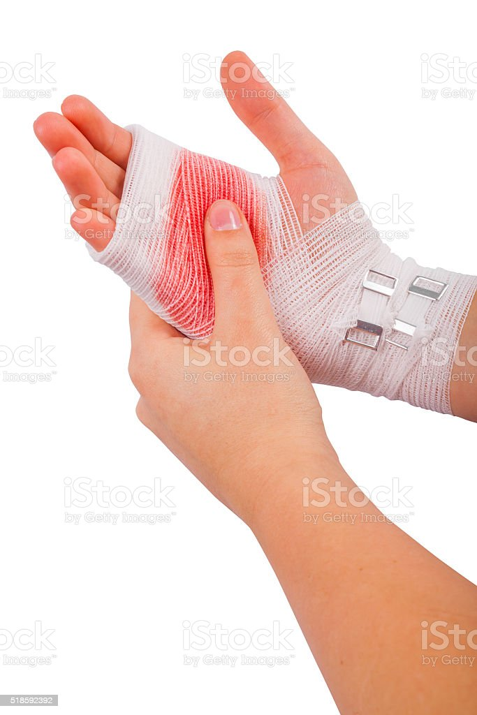 Injured hand of the girl tied up by white bandage stock photo