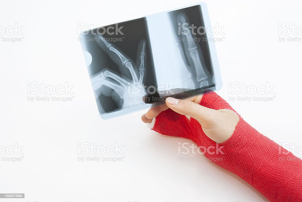 Injured human hand bandaged with x-ray print royalty-free stock photo