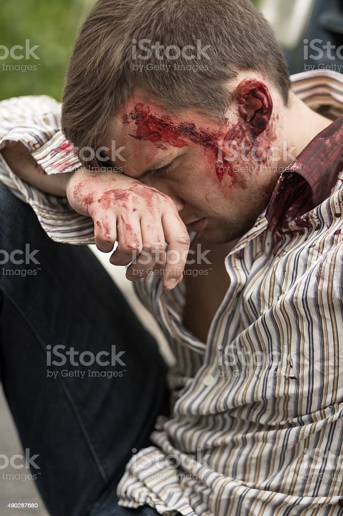 Injured man after car crash stock photo