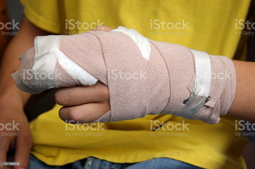 Injured person shows off wrist cast stock photo