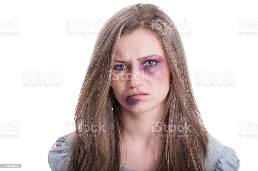 Injured woman with bruised eye stock photo