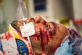 Injured young man in ER