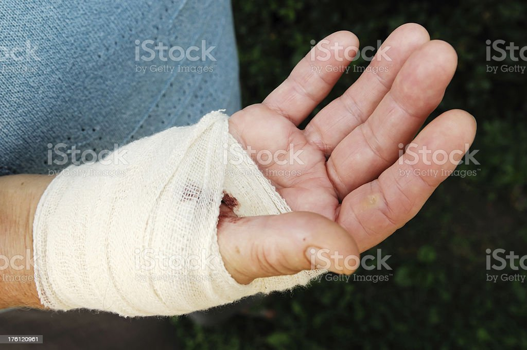 Injuried hand royalty-free stock photo