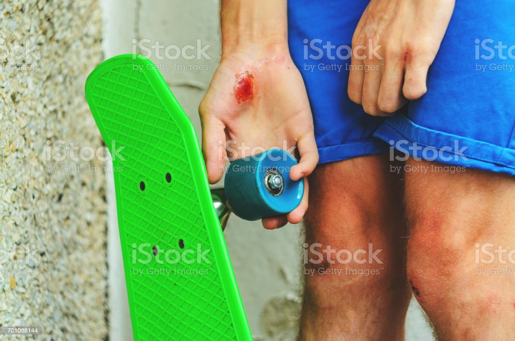 Injuries in extreme sports stock photo