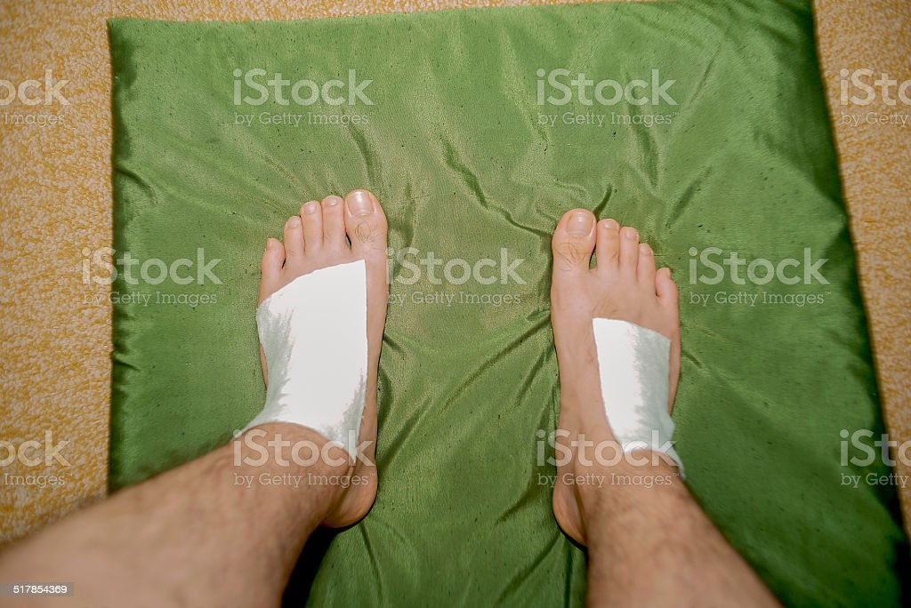 Instep that is applying a poultice stock photo