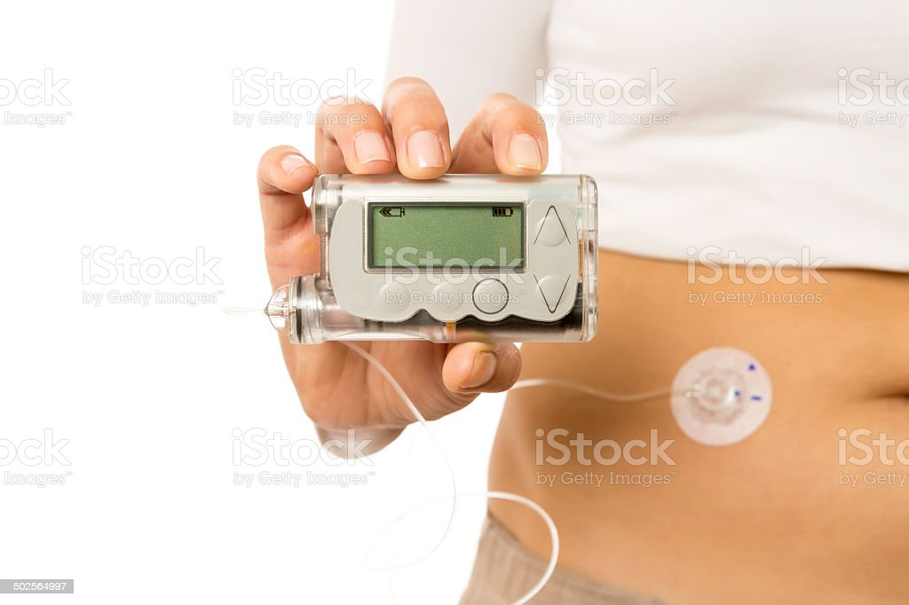 insulin pump stock photo