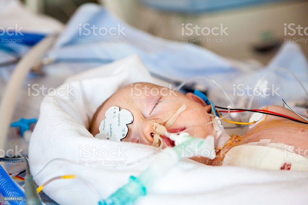 Intensive care. stock photo