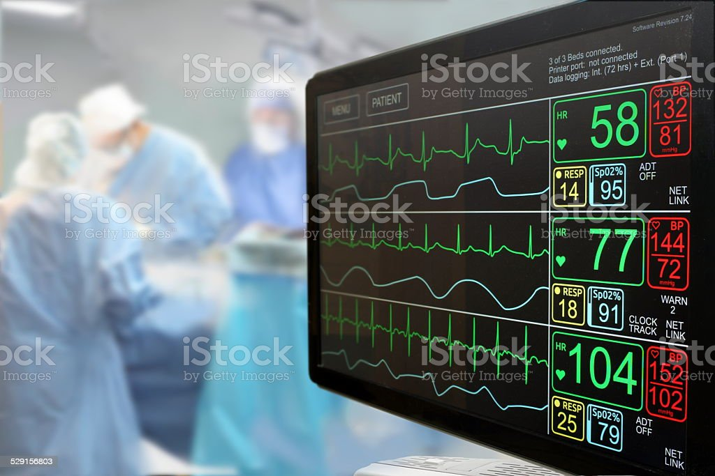 Intensive care unit monitor and surgery stock photo