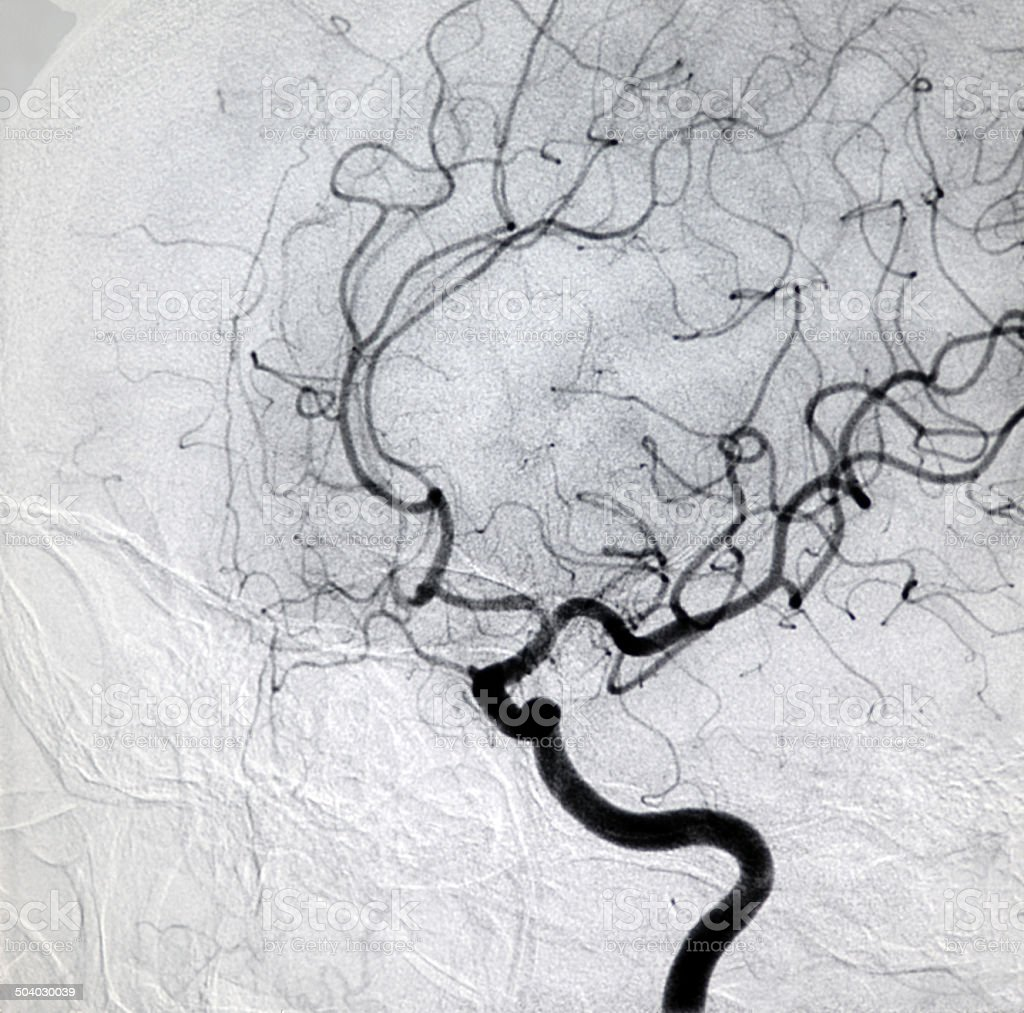 internal carotid artery DSA image stock photo
