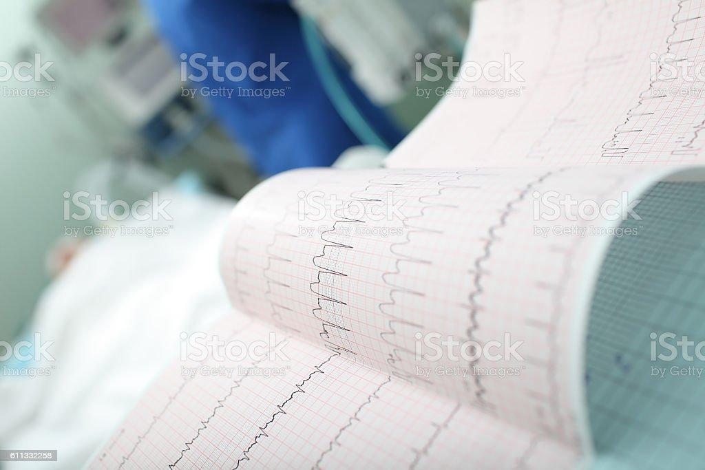 ECG interpretation in the intensive care stock photo