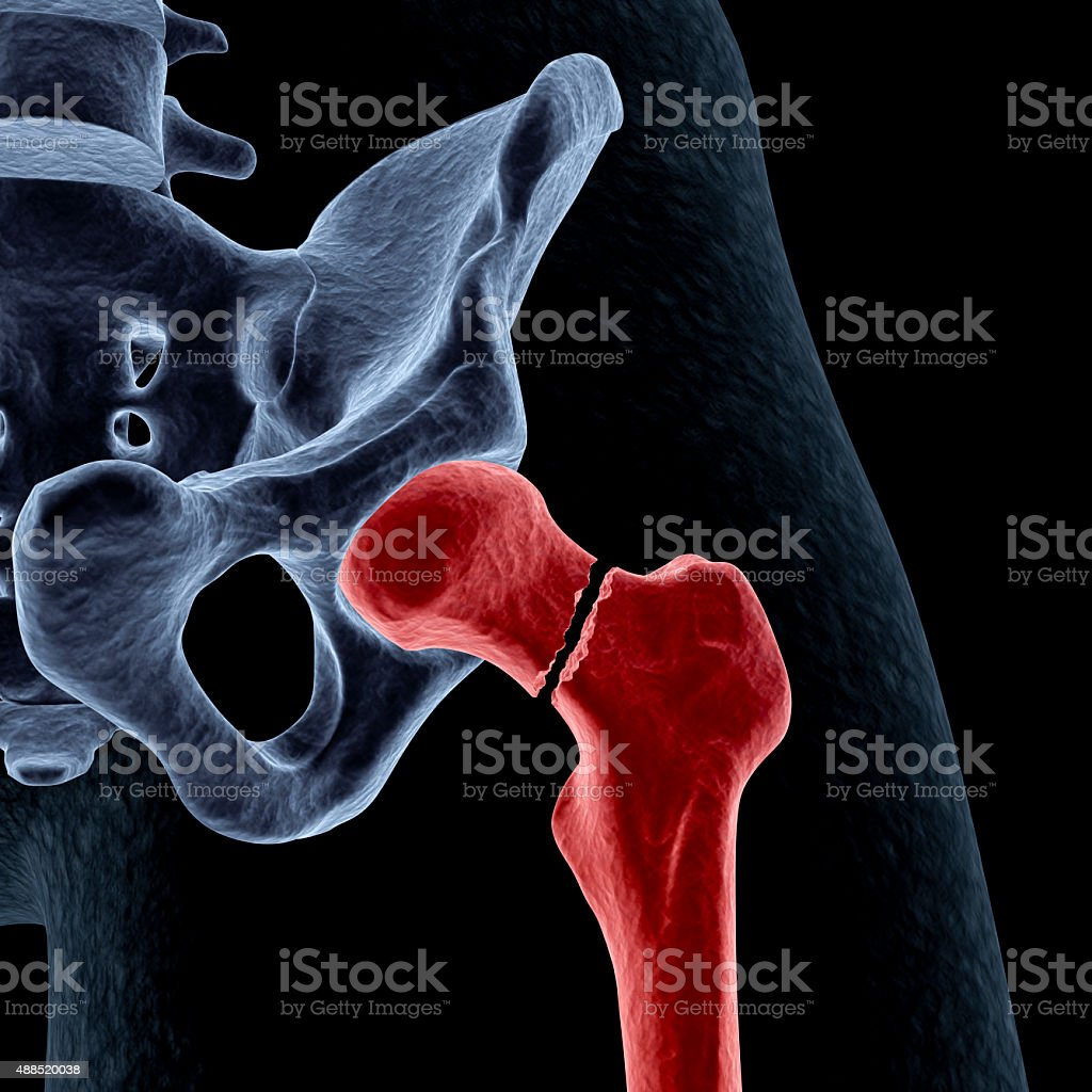 Intracapsular hip fracture stock photo