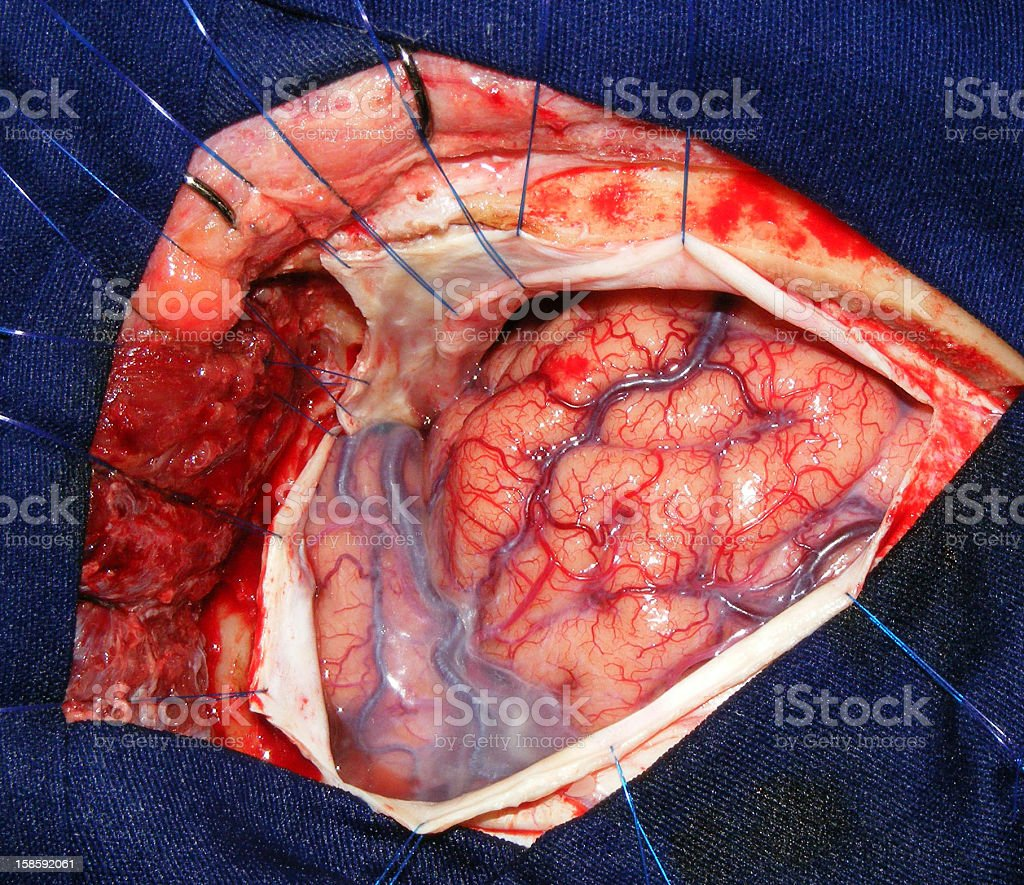 Intraoperative view of the human brain stock photo