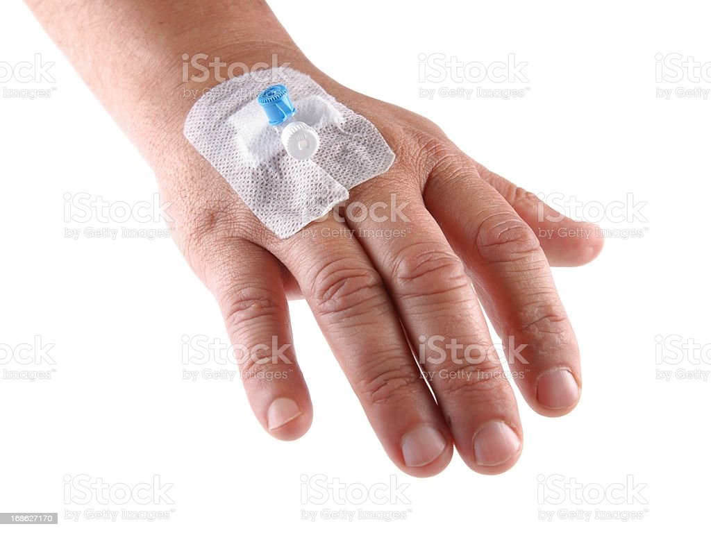 Intravenous cannula, Venflon founded on men's hand stock photo