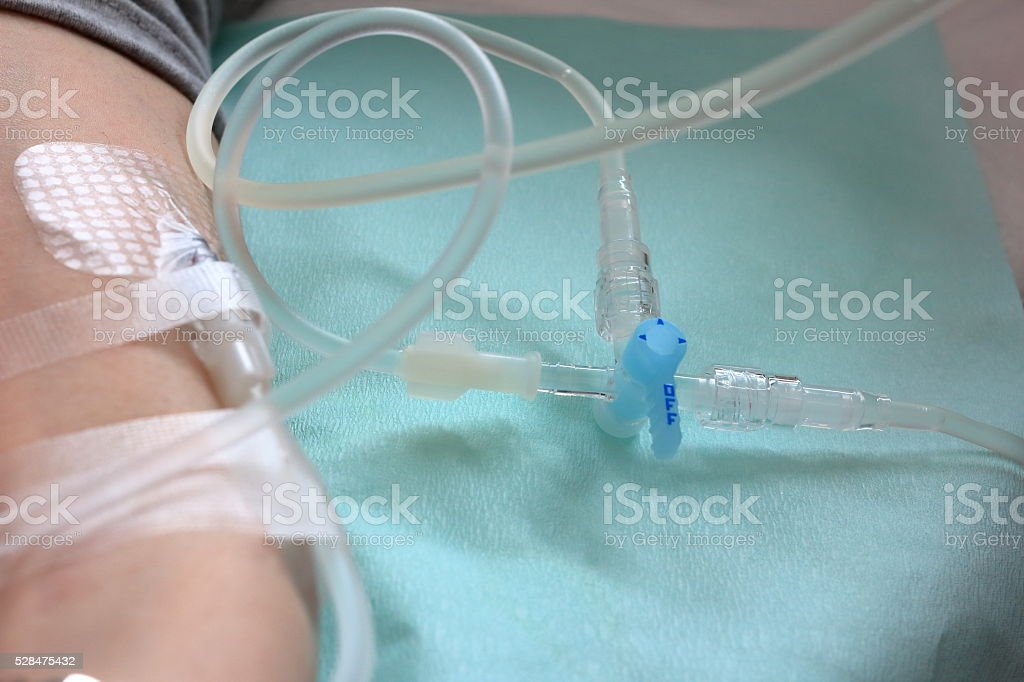 Intravenous therapy stock photo
