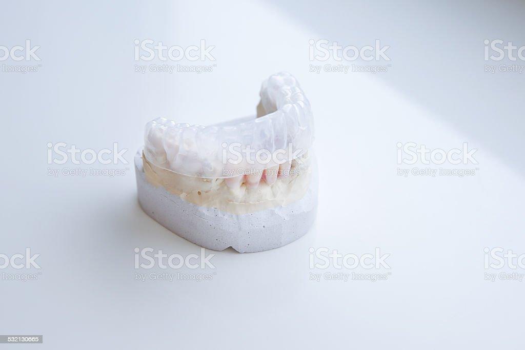 Invisalign, invisible plastic teeth aligner stock photo