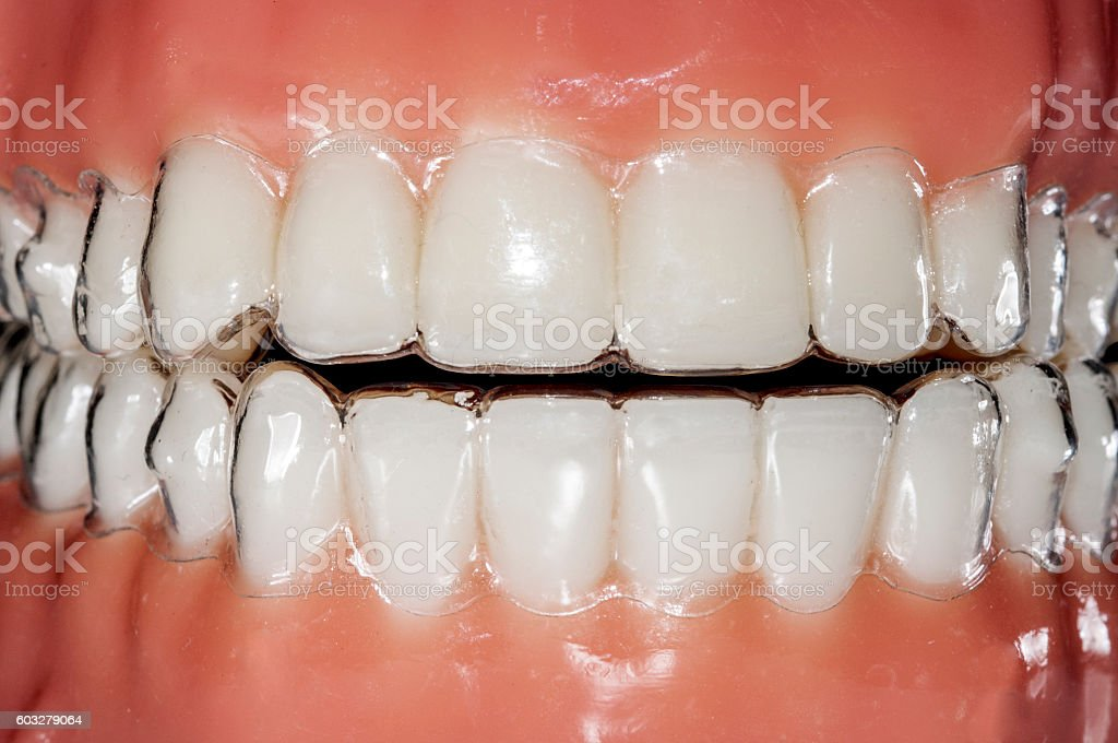 invisible braces orthodontic removable aligners for teeth treatment stock photo