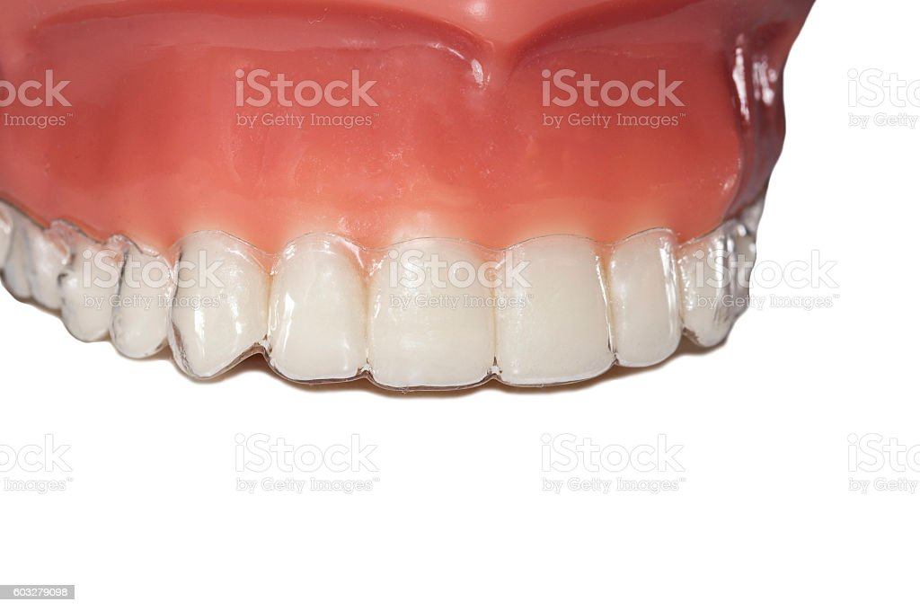 invisible braces orthodontic removable aligners stock photo