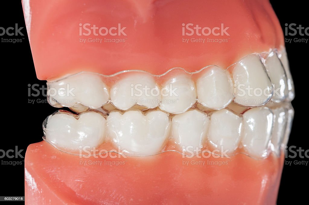 invisible orthodontic removable aligners for treatments bruxism stock photo