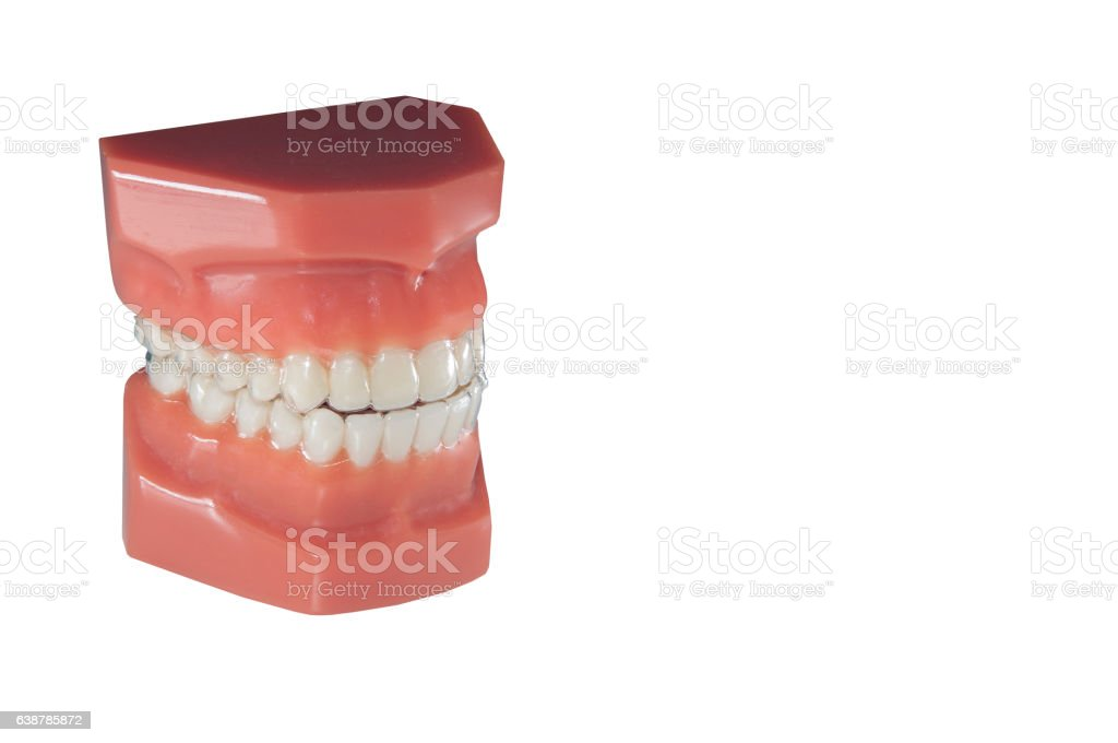 invisible orthodontic removable aligners stock photo