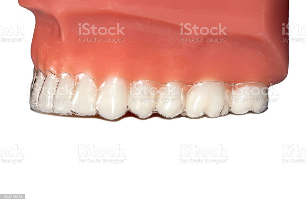 invisible orthodontic removable aligners teeth jaw stock photo